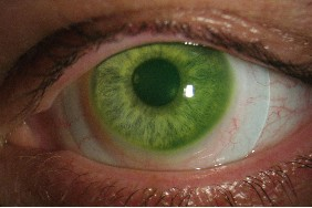 scleral-contact-lenses-on-keratoconus
