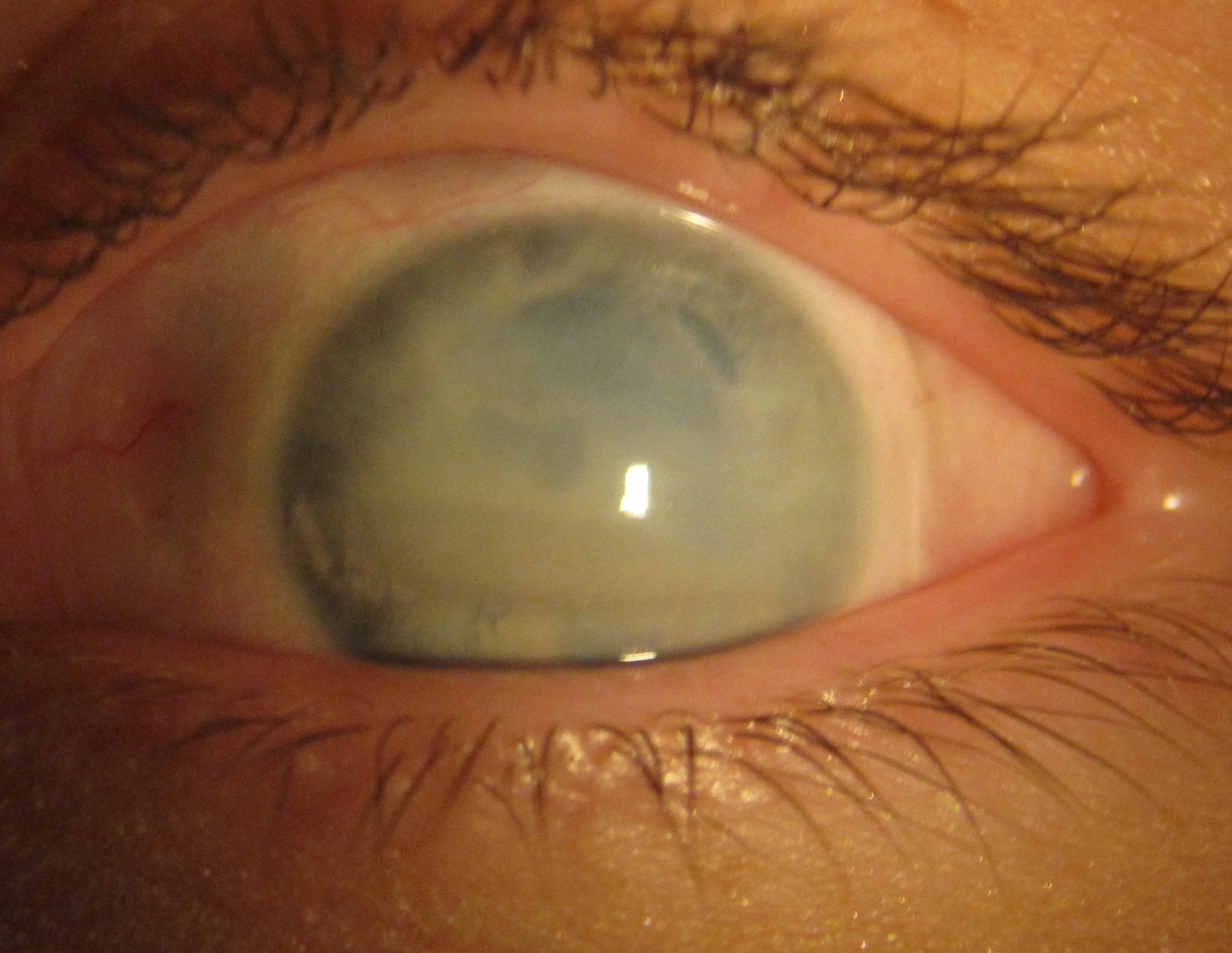 The Scleral Lens Center Page 2